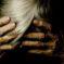 Depresión, apatía, ansiedad y agitación, trastornos frecuentes del enfermo de Alzheimer